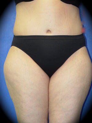 After Abdominoplasty Los Angeles