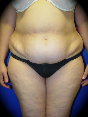 Before Tummy tuck Los Angeles