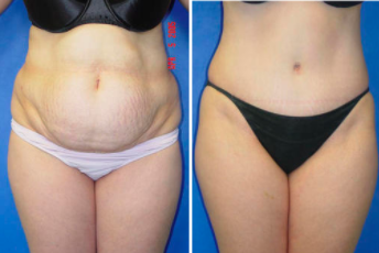 Which Tummy Tuck Surgery Is Right for Me? | Pasadena Cosmetic Surgery