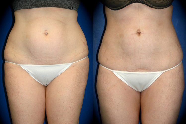 Dr. Martin O'Toole | Liposuction Before & After