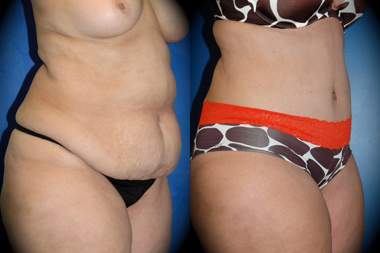 Dr. Martin O'Toole | Tummy Tuck Before & After