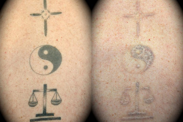 Dr. Martin O'Toole | Tattoo Removal Before & After
