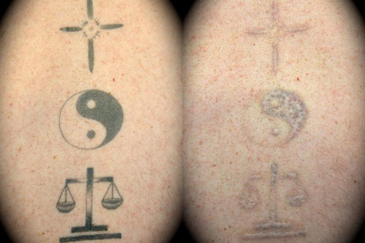 Laser Tattoo Removal | Los Angeles | Pasadena Cosmetic Surgery