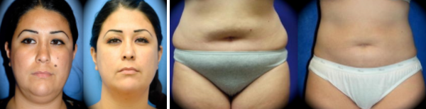 Smartlipo® and Power-Assisted Liposuction Before and After Photos