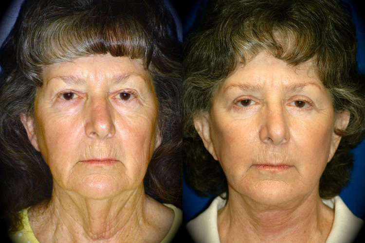 Facelift Before & After Patient 3