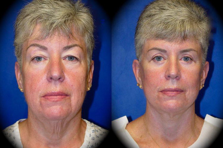 Facelift Before & After Patient 1
