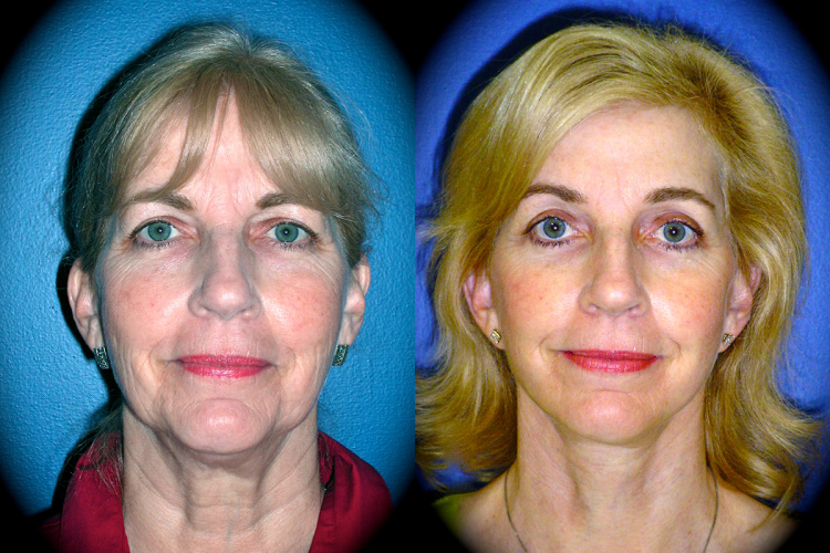 Facelift Before & After Patient 2
