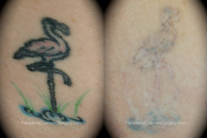O'Toole Tattoo Removal Patient before and after photos