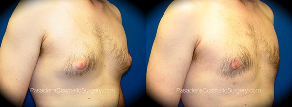 Men's Gynecomastia Before & After
