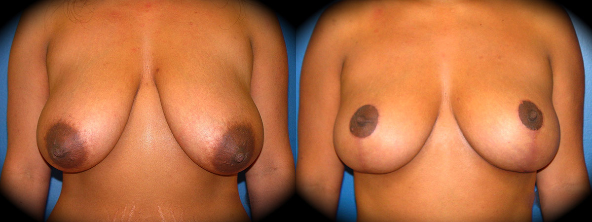 Dr. O'Toole Breast Lift Before & After