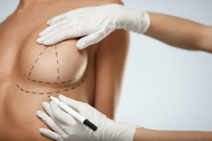 Woman's breast marked with marker by surgeon in preparation for surgery