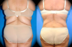 SmartLipo Patient by Dr. OToole