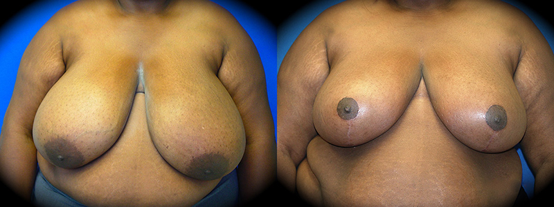 Breast Reduction Before & After Patient 2