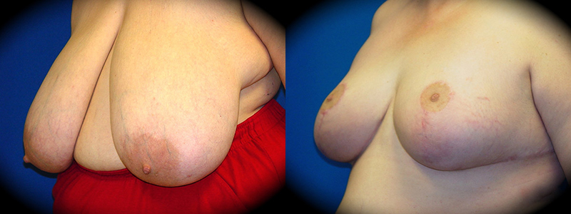 Breast Reduction Before & After Patient 1