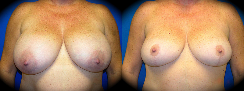 Breast Reduction Before & After Patient 3