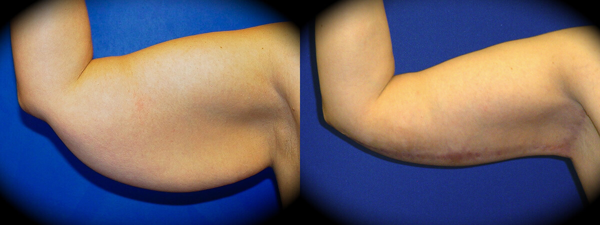 Arm Lift Before & After Patient 2
