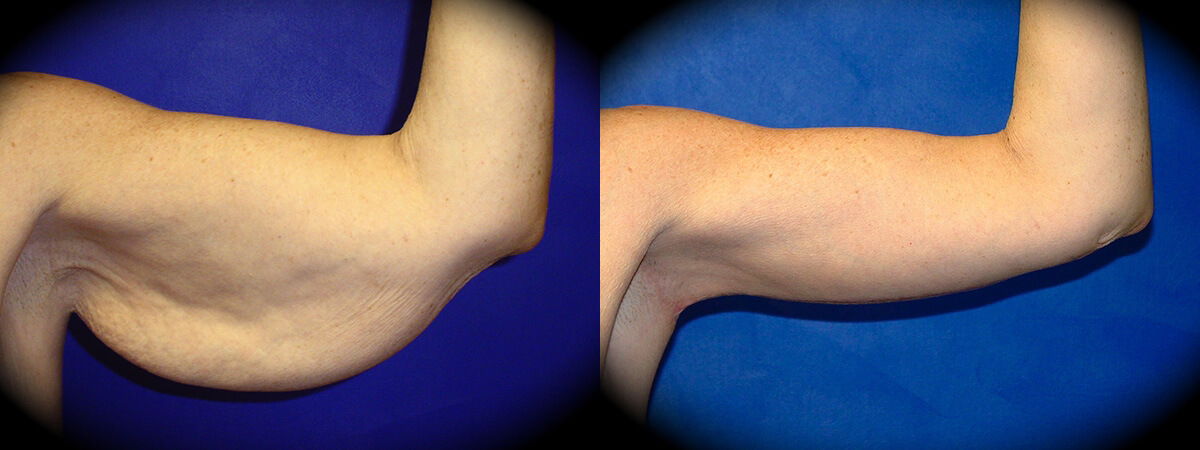 Arm Lift Before & After Patient 3