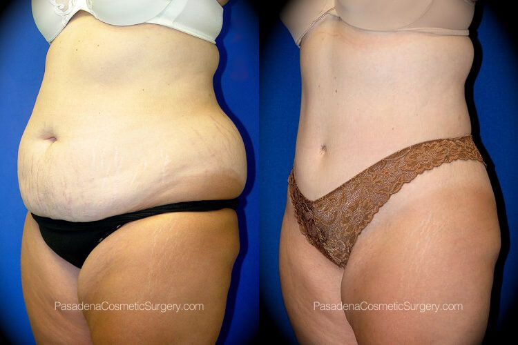 Body Lift Before & After Patient 2