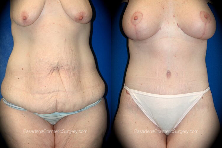 Body Lift Before & After Patient 3