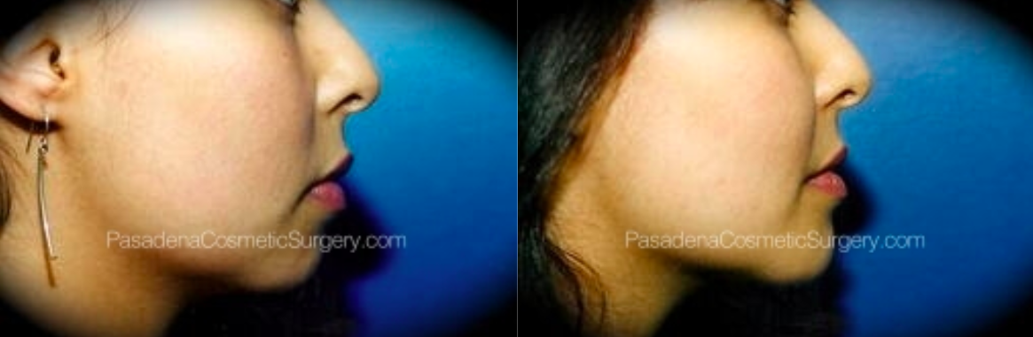 Chin augmentation patient before and after