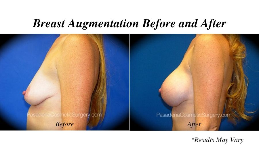 before-and-after-breast-augmentation-2016_09_96127_a3