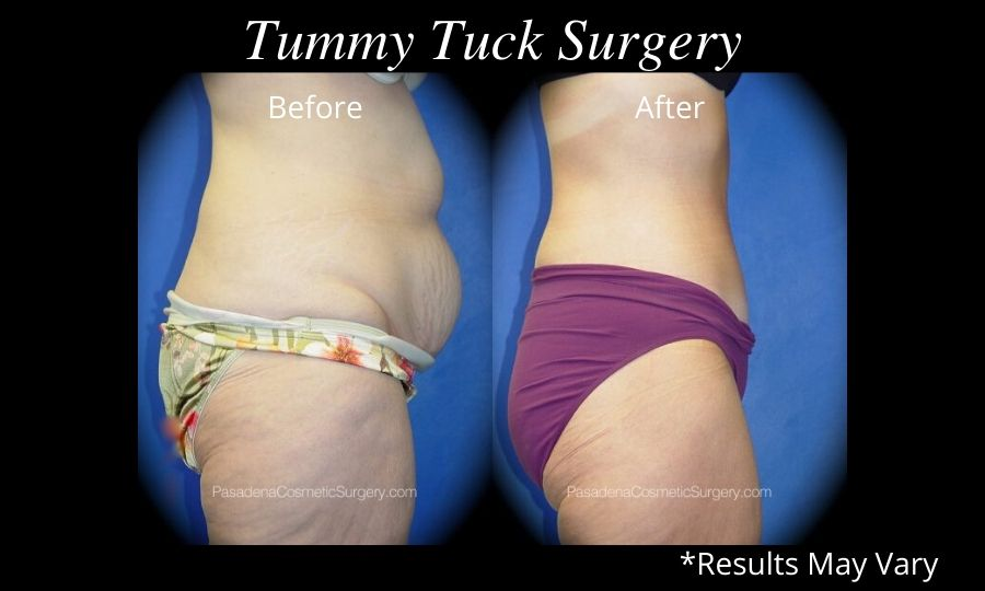 Woman before and after a tummy tuck.