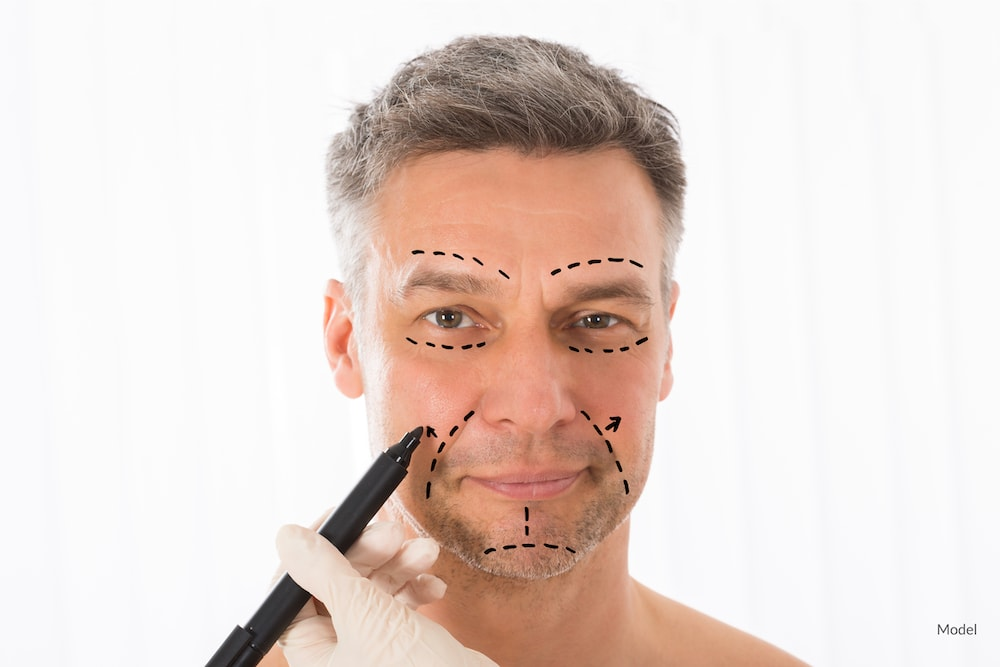 Man getting face mapped for facelift surgery.