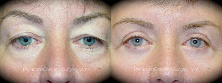Eyelid Patient before and after