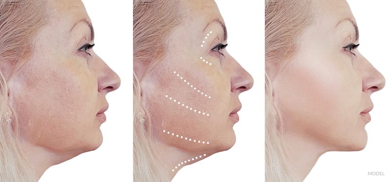 Before and after image showing a facelift.