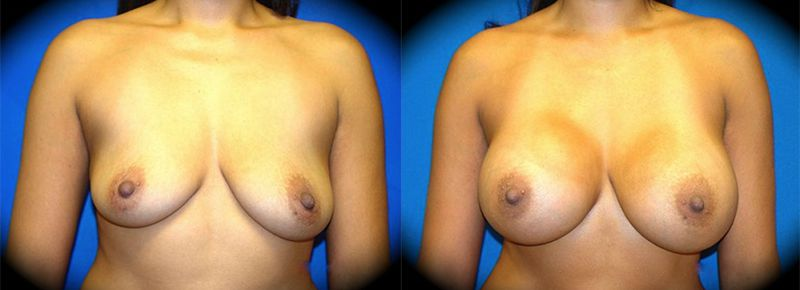 Breast Augmentation Before & After Patient 2