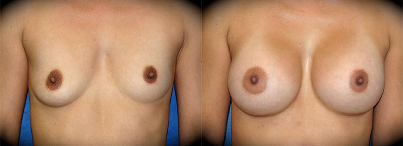 Breast Augmentation Before & After Patient 3