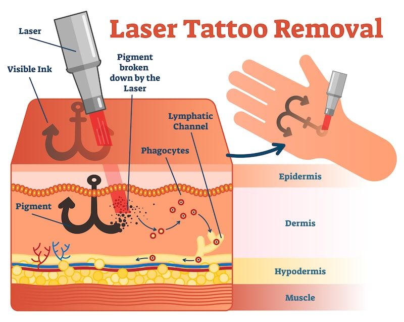 Illustration showing laser tattoo removal process
