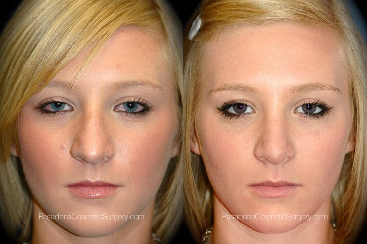 Rhinoplasty in Pasadena Before & After Patient 2