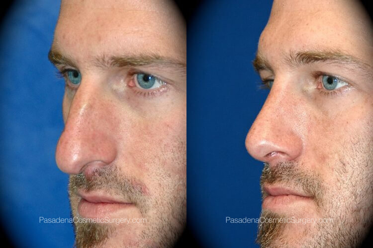 Rhinoplasty in Pasadena Before & After Patient 3