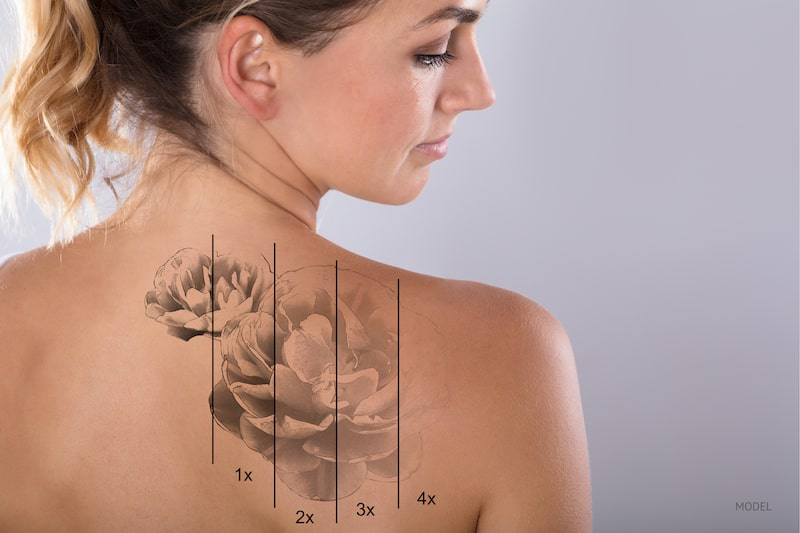 Woman's back with different stages of laser tattoo removal.