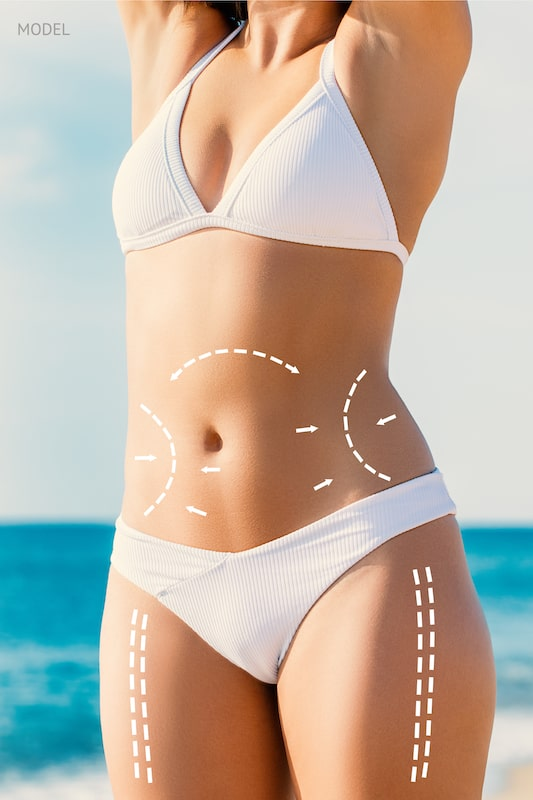 Woman in a white bikini on beach with body contouring lines drawn on abdomen, waist, and thigh.